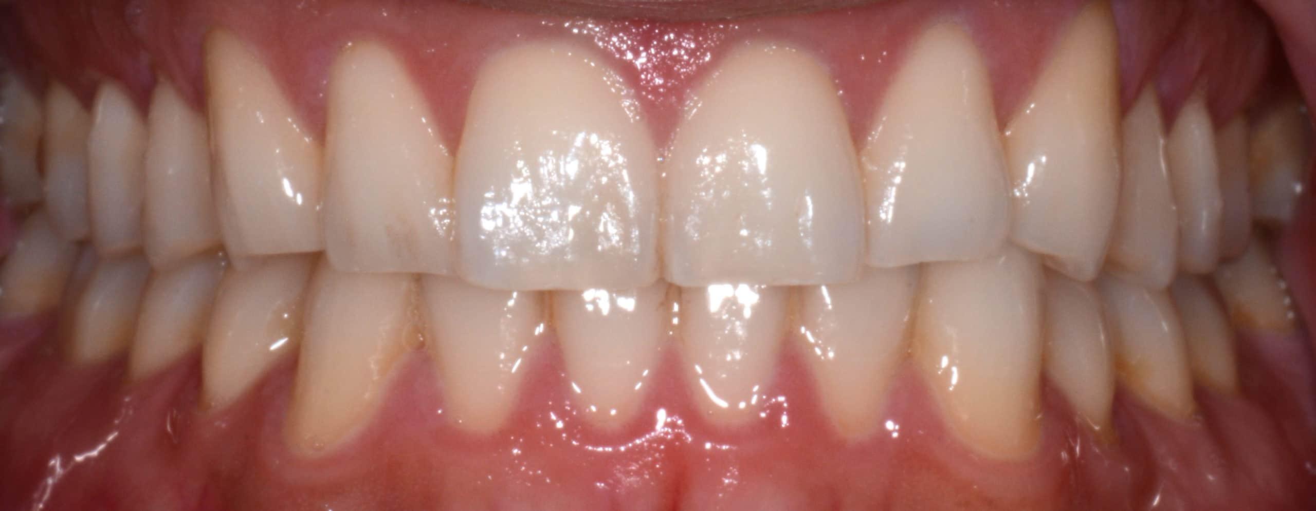Dental before & after photos - Suezaki Family Dentistry in San Jose, CA